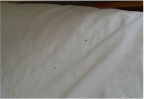Early Signs To Look For In A Bed Bug Inspection
