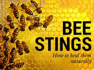 How to Heal Bee Stings Naturally